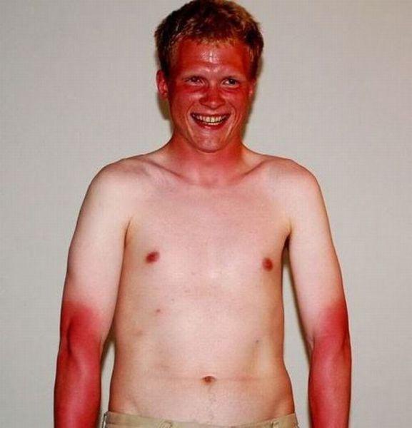 guiri que no sabe tomar el sol Guiri que no sabe tomar el sol