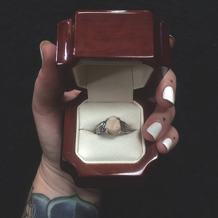 anillo compromiso muela del juicio 1