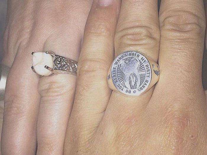 anillo compromiso muela del juicio 4