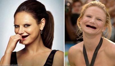sonrisas-sin-dientes-5