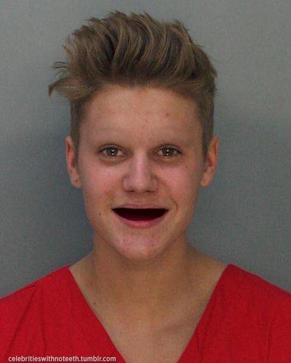 sonrisas-sin-dientes-6