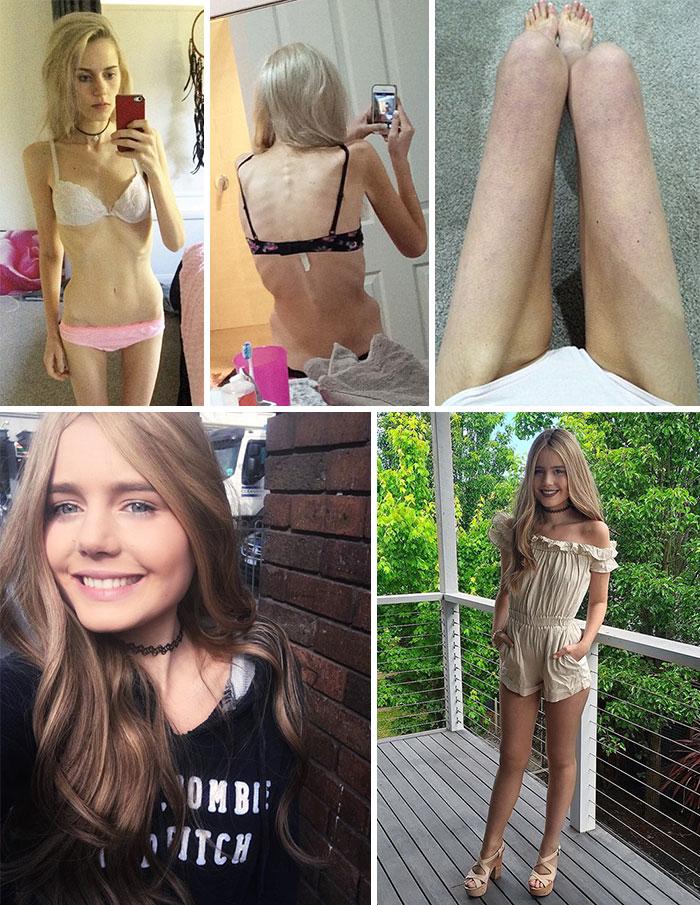anorexia-antes-y-despues