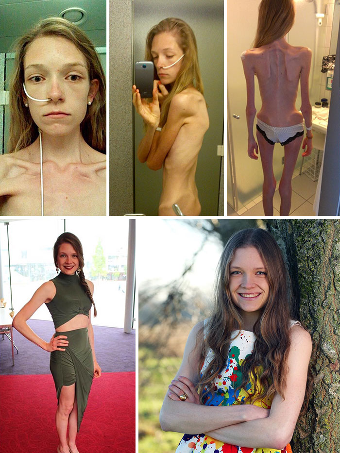 anorexia-antes-y-despues