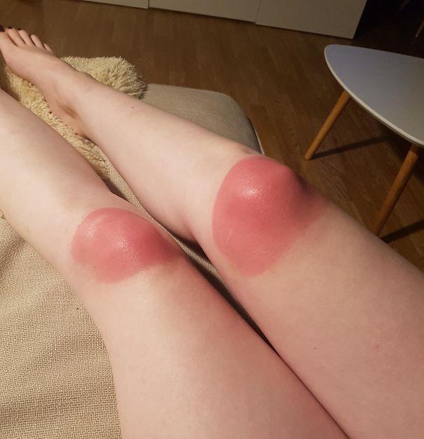 rodillas-quemadas